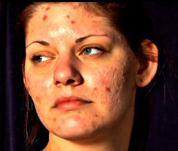 Skin Picking Disorder Fact Sheet