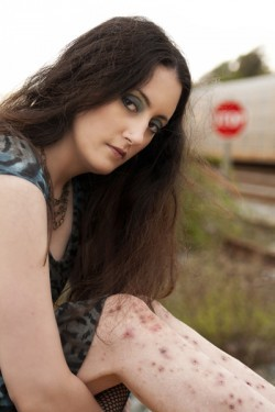 Photo of Angela Hartlin, displaying her Skin Picking Scars on her legs.