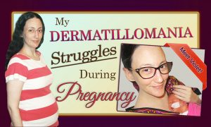 My Dermatillomania Challenges During Pregnancy